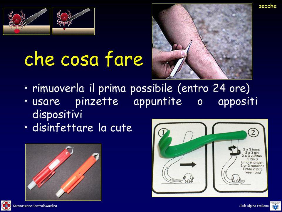 Commissione Centrale Medica Club Alpino Italiano che cosa fare rimuoverla il prima possibile (entro 24 ore) usare pinzette appuntite o appositi dispositivi disinfettare la cute zecche