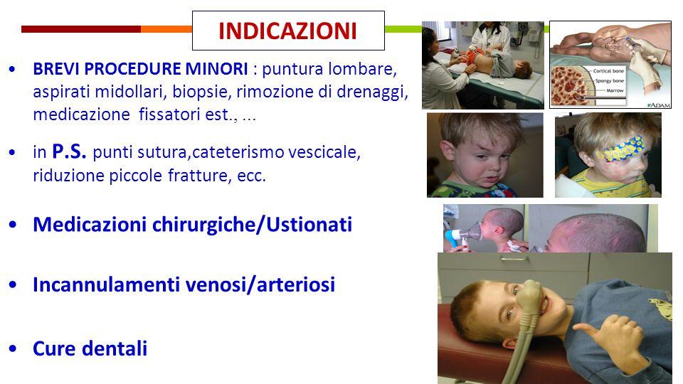 BREVI PROCEDURE MINORI : puntura lombare, aspirati midollari, biopsie, rimozione di drenaggi, medicazione fissatori est.,... INDICAZIONI Cure dentali