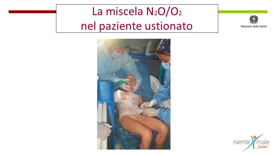 La miscela N 2 O/O 2 nel paziente ustionato