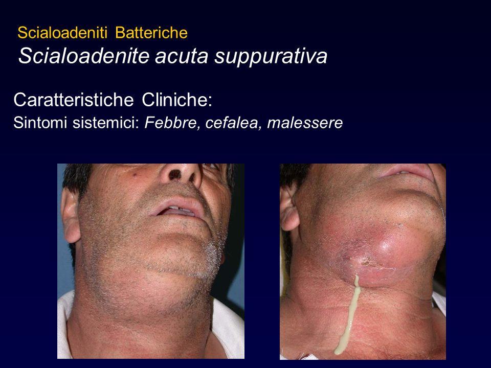 Caratteristiche Cliniche: Sintomi sistemici: Febbre, cefalea, malessere Scialoadeniti Batteriche Scialoadenite acuta suppurativa