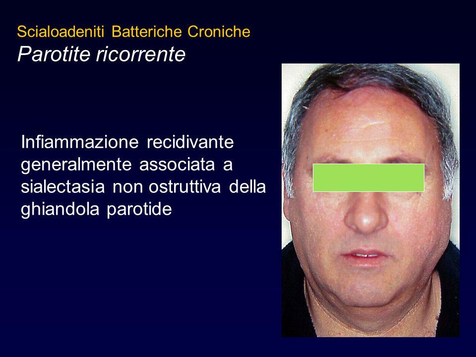 Infiammazione recidivante generalmente associata a sialectasia non ostruttiva della ghiandola parotide Scialoadeniti Batteriche Croniche Parotite rico