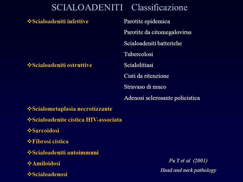 SCIALOADENITI Classificazione  Scialoadeniti infettiveParotite epidemica Parotite da citomegalovirus Scialoadeniti batteriche Tubercolosi  Scialoade