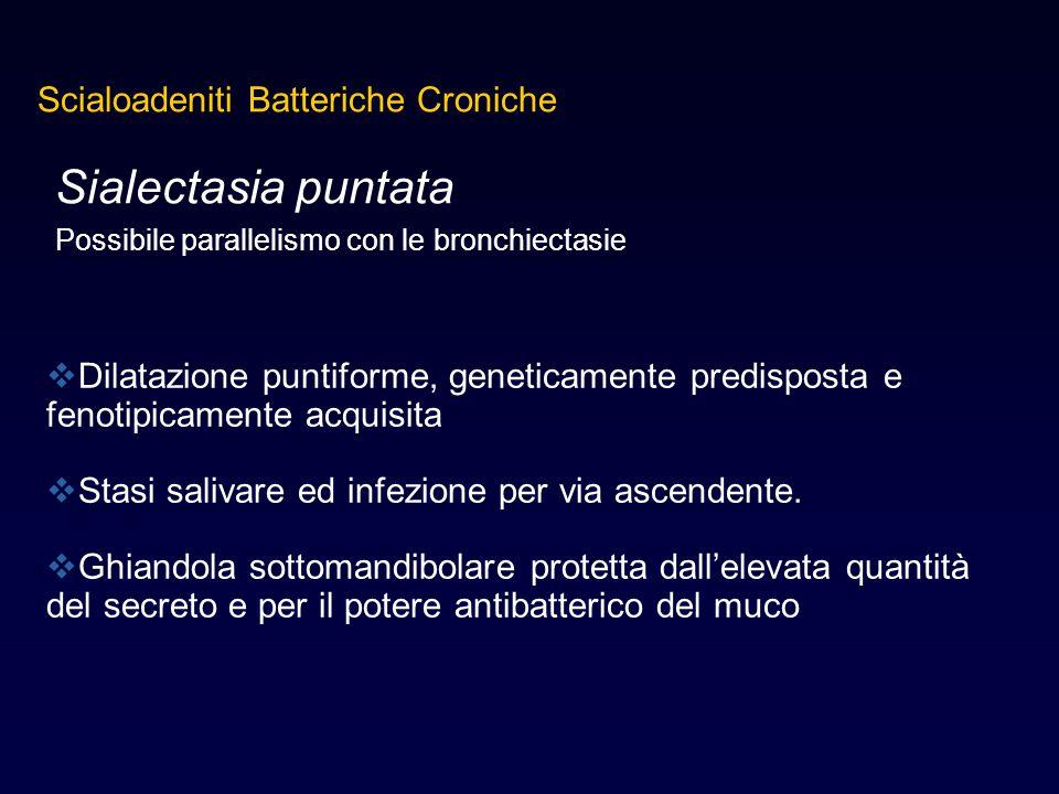 Sialectasia puntata Possibile parallelismo con le bronchiectasie  Dilatazione puntiforme, geneticamente predisposta e fenotipicamente acquisita  Sta