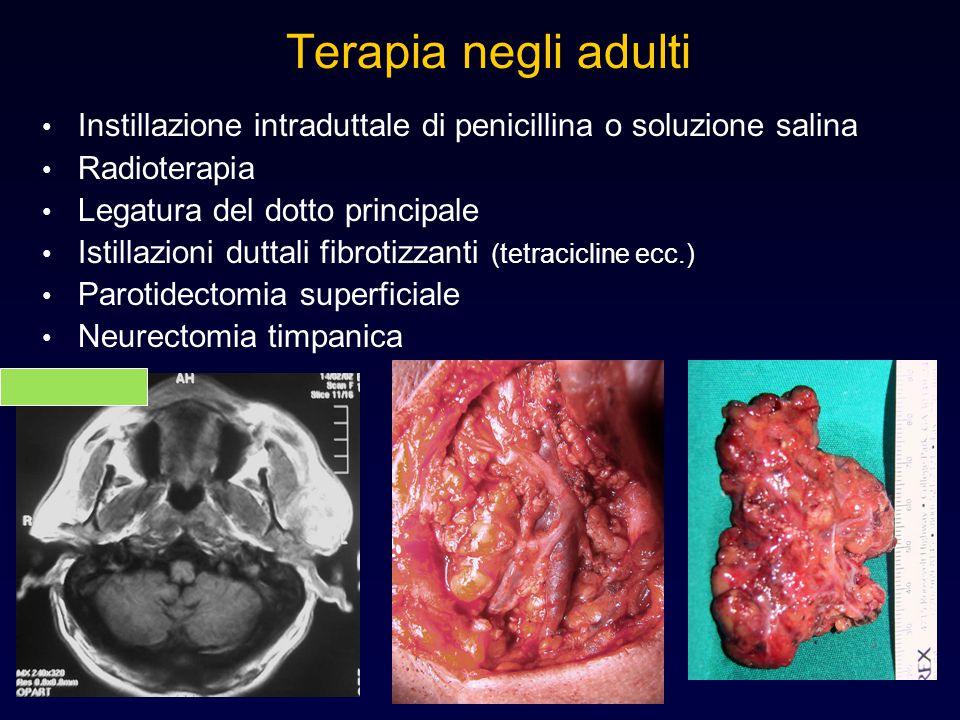 Terapia negli adulti Instillazione intraduttale di penicillina o soluzione salina Radioterapia Legatura del dotto principale Istillazioni duttali fibr