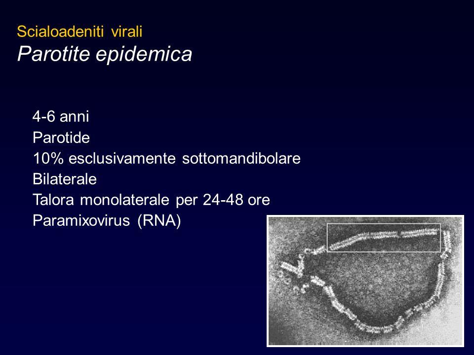 Scialoadeniti virali Parotite epidemica 4-6 anni Parotide 10% esclusivamente sottomandibolare Bilaterale Talora monolaterale per 24-48 ore Paramixovir