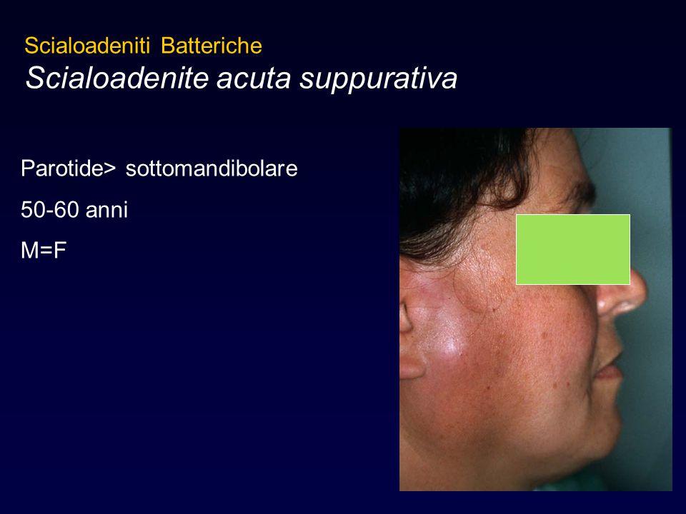 Scialoadeniti Batteriche Scialoadenite acuta suppurativa Parotide> sottomandibolare 50-60 anni M=F