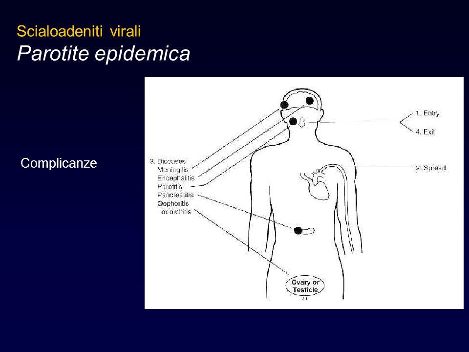 Scialoadeniti virali Parotite epidemica Complicanze