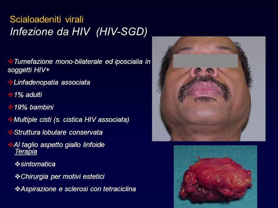 Scialoadeniti virali Infezione da HIV (HIV-SGD)  Tumefazione mono-bilaterale ed iposcialia in soggetti HIV+  Linfadenopatia associata  1% adulti 