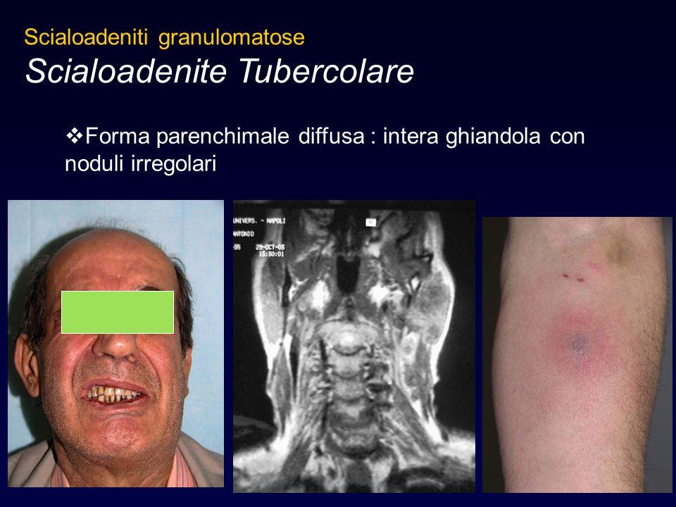  Forma parenchimale diffusa : intera ghiandola con noduli irregolari Scialoadeniti granulomatose Scialoadenite Tubercolare