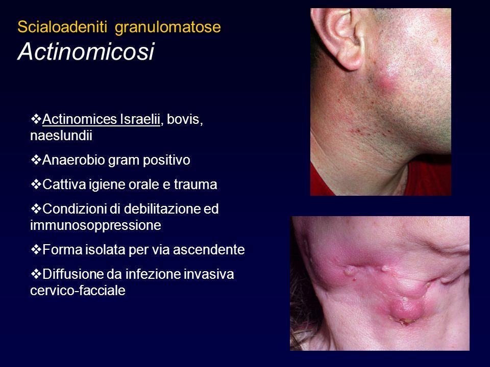  Actinomices Israelii, bovis, naeslundii  Anaerobio gram positivo  Cattiva igiene orale e trauma  Condizioni di debilitazione ed immunosoppression