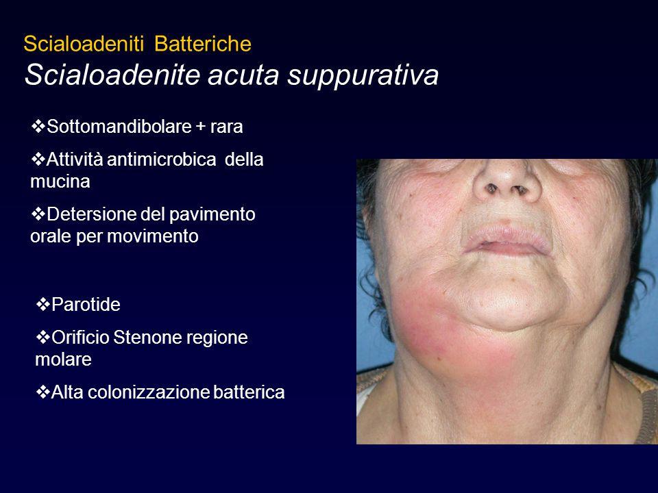 Scialoadeniti Batteriche Scialoadenite acuta suppurativa  Sottomandibolare + rara  Attività antimicrobica della mucina  Detersione del pavimento or