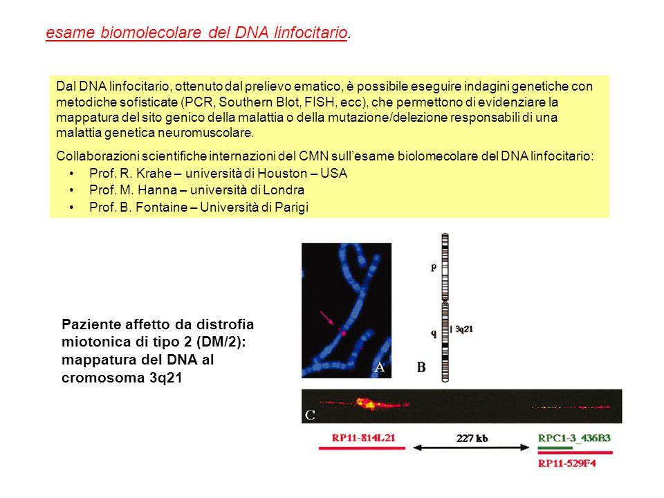 Paziente affetto da distrofia miotonica di tipo 2 (DM/2): mappatura del DNA al cromosoma 3q21 Dal DNA linfocitario, ottenuto dal prelievo ematico, è p