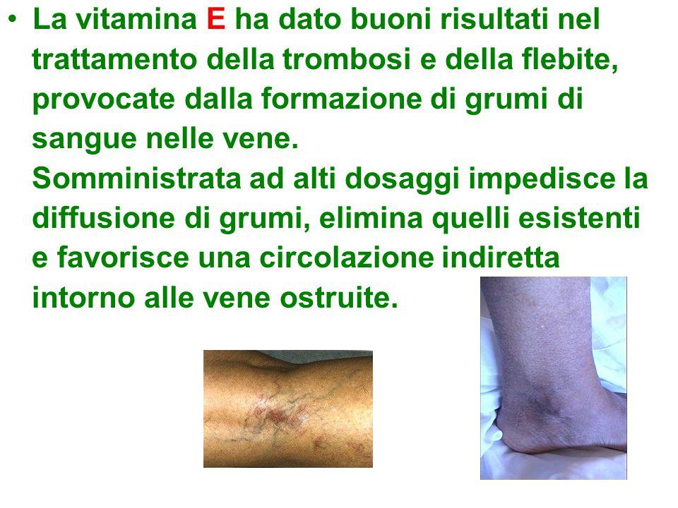 La vitamina E ha dato buoni risultati nel trattamento della trombosi e della flebite, provocate dalla formazione di grumi di sangue nelle vene.