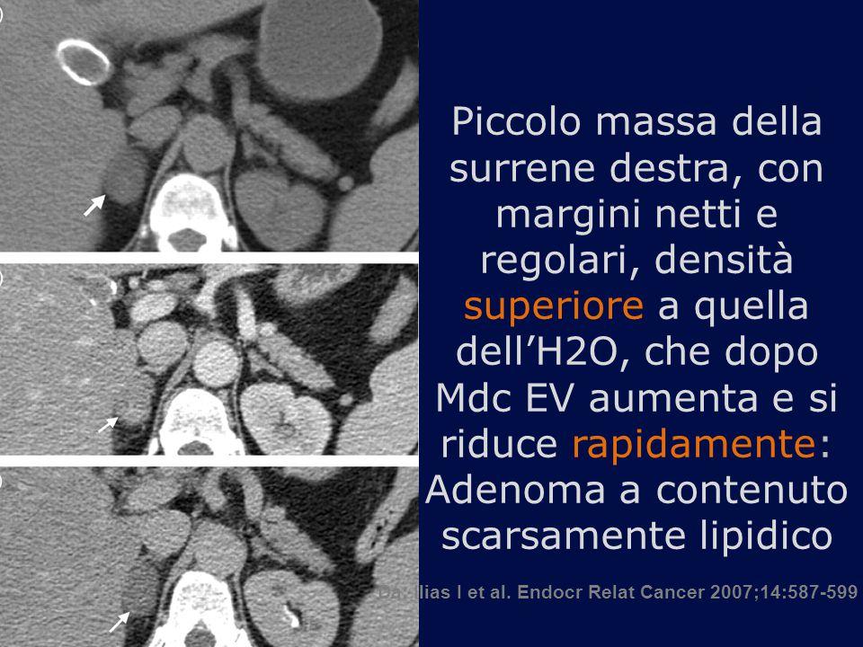 Piccolo massa della surrene destra, con margini netti e regolari, densità superiore a quella dell'H2O, che dopo Mdc EV aumenta e si riduce rapidamente: Adenoma a contenuto scarsamente lipidico Da: Ilias I et al.