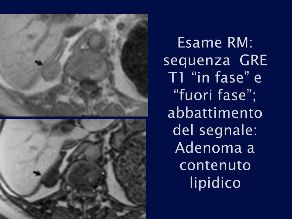 """Esame RM: sequenza GRE T1 """"in fase"""" e """"fuori fase""""; abbattimento del segnale: Adenoma a contenuto lipidico"""