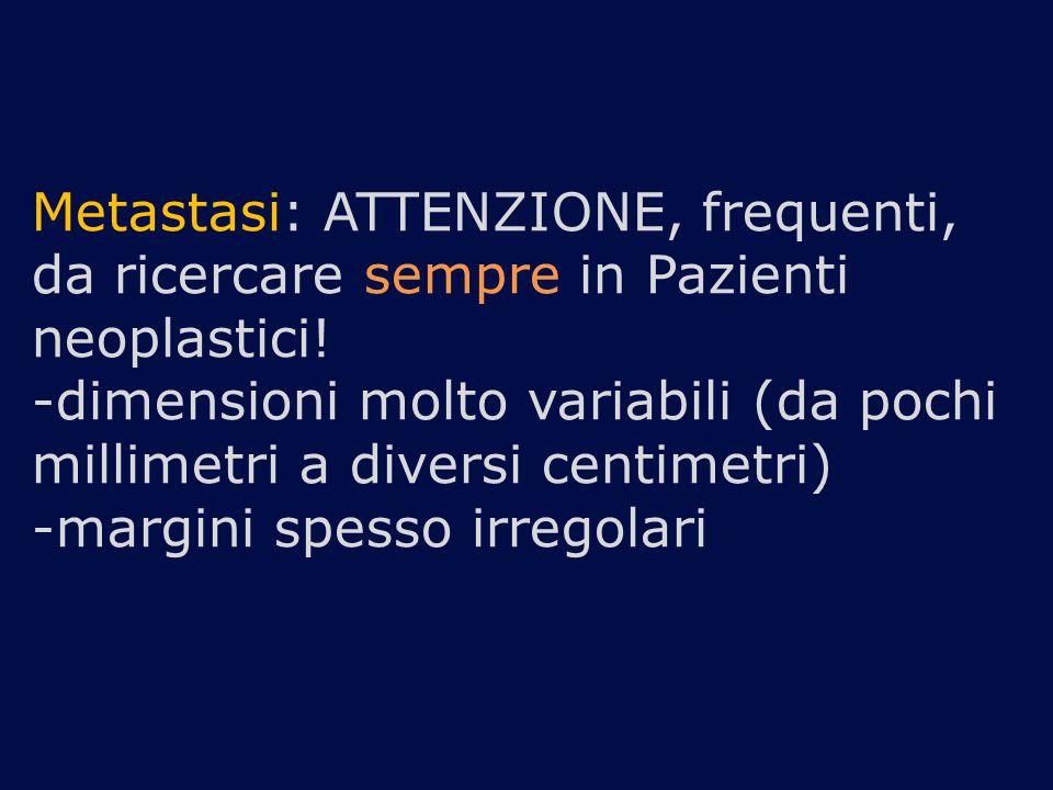 Metastasi: ATTENZIONE, frequenti, da ricercare sempre in Pazienti neoplastici! -dimensioni molto variabili (da pochi millimetri a diversi centimetri)