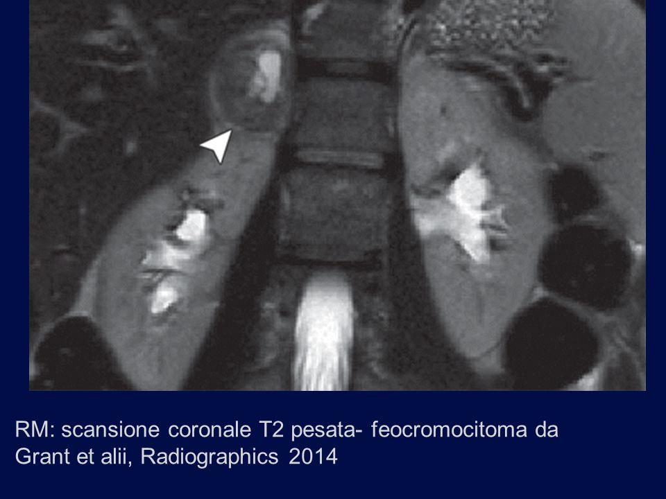 RM: scansione coronale T2 pesata- feocromocitoma da Grant et alii, Radiographics 2014