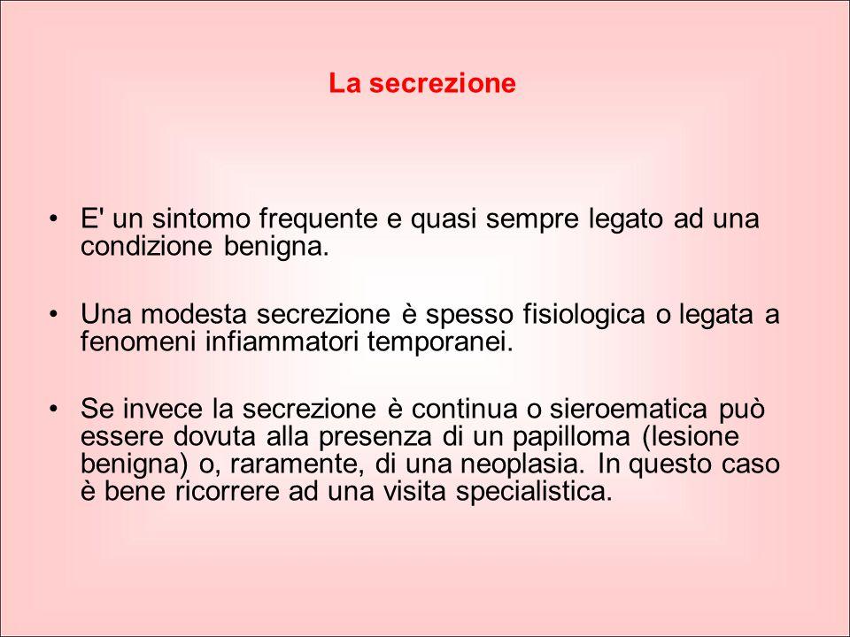 La secrezione E' un sintomo frequente e quasi sempre legato ad una condizione benigna. Una modesta secrezione è spesso fisiologica o legata a fenomeni