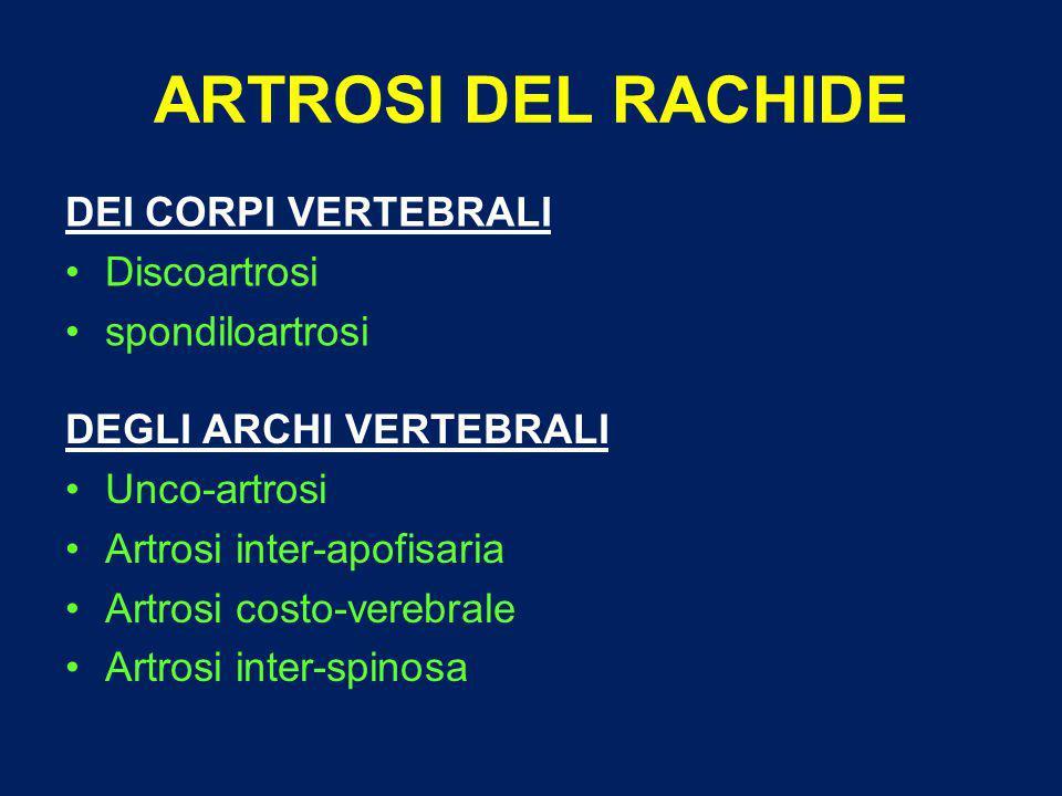 ARTROSI DEL RACHIDE DEI CORPI VERTEBRALI Discoartrosi spondiloartrosi DEGLI ARCHI VERTEBRALI Unco-artrosi Artrosi inter-apofisaria Artrosi costo-verebrale Artrosi inter-spinosa