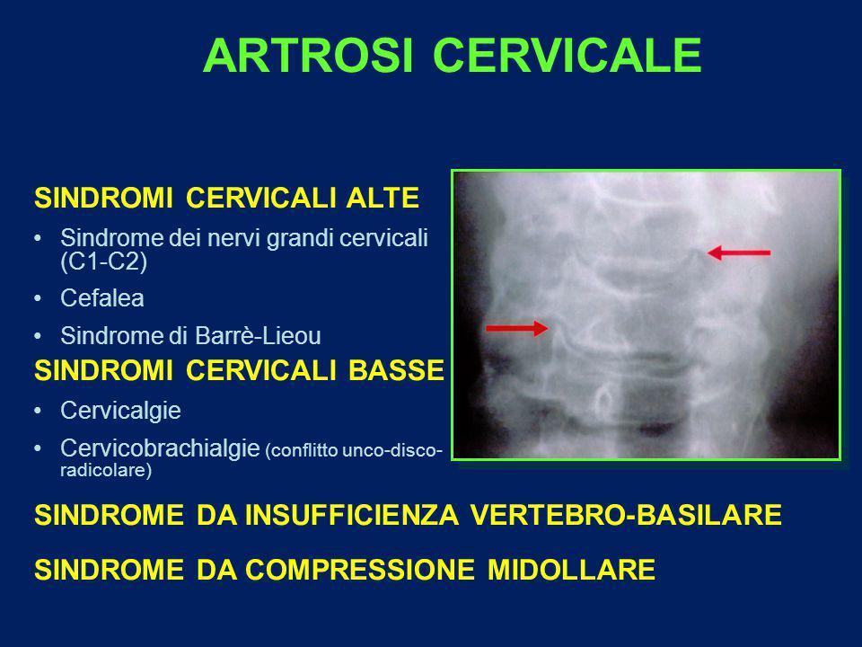 ARTROSI CERVICALE SINDROMI CERVICALI ALTE Sindrome dei nervi grandi cervicali (C1-C2) Cefalea Sindrome di Barrè-Lieou SINDROMI CERVICALI BASSE Cervicalgie Cervicobrachialgie (conflitto unco-disco- radicolare) SINDROME DA INSUFFICIENZA VERTEBRO-BASILARE SINDROME DA COMPRESSIONE MIDOLLARE