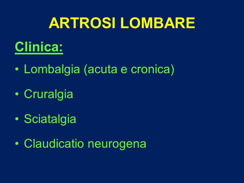 ARTROSI LOMBARE Clinica: Lombalgia (acuta e cronica) Cruralgia Sciatalgia Claudicatio neurogena
