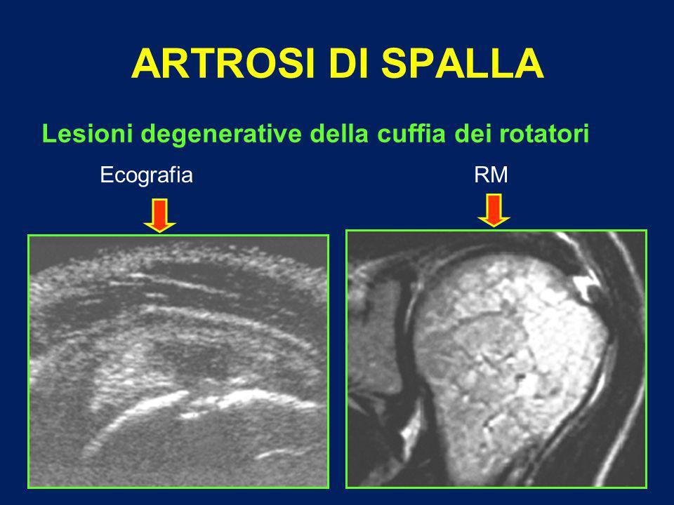 ARTROSI DI SPALLA Lesioni degenerative della cuffia dei rotatori Ecografia RM