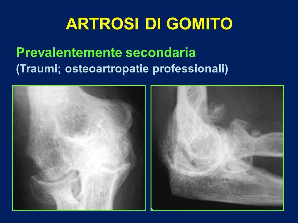 ARTROSI DI GOMITO Prevalentemente secondaria (Traumi; osteoartropatie professionali)
