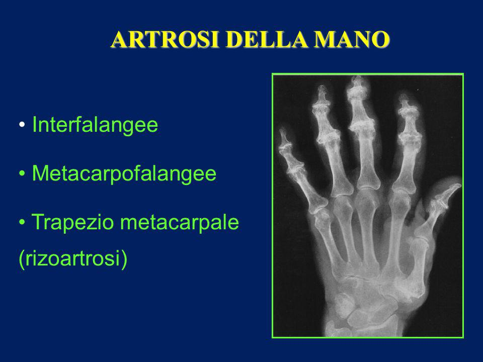 ARTROSI DELLA MANO Interfalangee Metacarpofalangee Trapezio metacarpale (rizoartrosi)