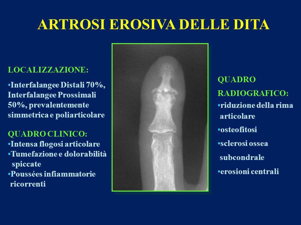 ARTROSI EROSIVA DELLE DITA LOCALIZZAZIONE: Interfalangee Distali 70%, Interfalangee Prossimali 50%, prevalentemente simmetrica e poliarticolare QUADRO CLINICO: Intensa flogosi articolare Tumefazione e dolorabilità spiccate Poussées infiammatorie ricorrenti QUADRO RADIOGRAFICO: riduzione della rima articolare osteofitosi sclerosi ossea subcondrale erosioni centrali