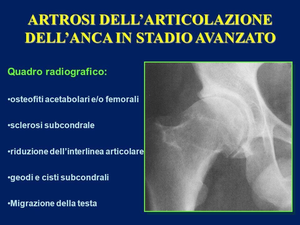 ARTROSI DELL'ARTICOLAZIONE DELL'ANCA IN STADIO AVANZATO Quadro radiografico: osteofiti acetabolari e/o femorali sclerosi subcondrale riduzione dell'interlinea articolare geodi e cisti subcondrali Migrazione della testa