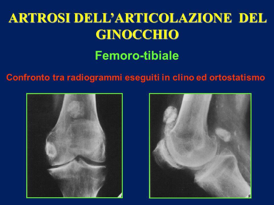 ARTROSI DELL'ARTICOLAZIONE DEL GINOCCHIO Femoro-tibiale Confronto tra radiogrammi eseguiti in clino ed ortostatismo