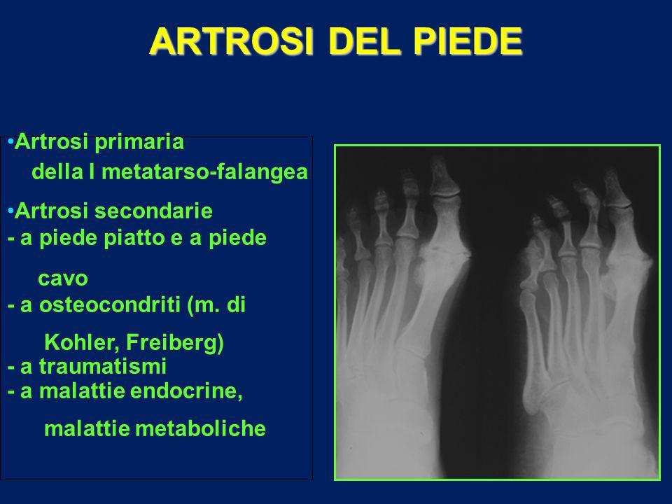 ARTROSI DEL PIEDE Artrosi primaria della I metatarso-falangea Artrosi secondarie - a piede piatto e a piede cavo - a osteocondriti (m.