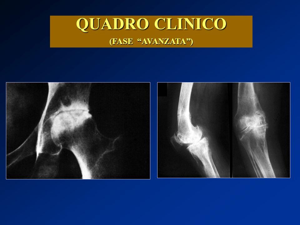 """QUADRO CLINICO (FASE """"AVANZATA"""")"""