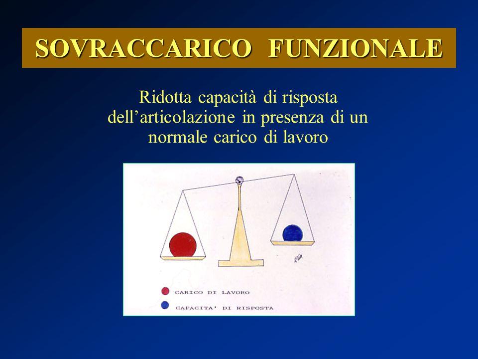 SOVRACCARICO FUNZIONALE Ridotta capacità di risposta dell'articolazione in presenza di un normale carico di lavoro