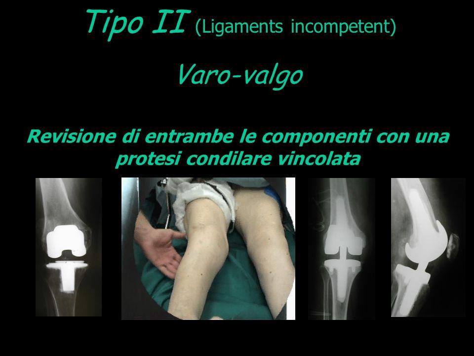 Varo-valgo Revisione di entrambe le componenti con una protesi condilare vincolata Tipo II (Ligaments incompetent)