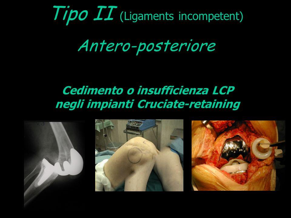 Cedimento o insufficienza LCP negli impianti Cruciate-retaining Antero-posteriore Tipo II (Ligaments incompetent)