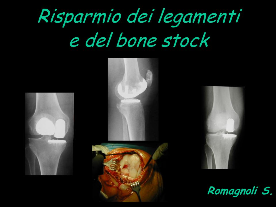 ragioniamo in termini di mininvasività anche per la chirurgia di revisione delle instabilità