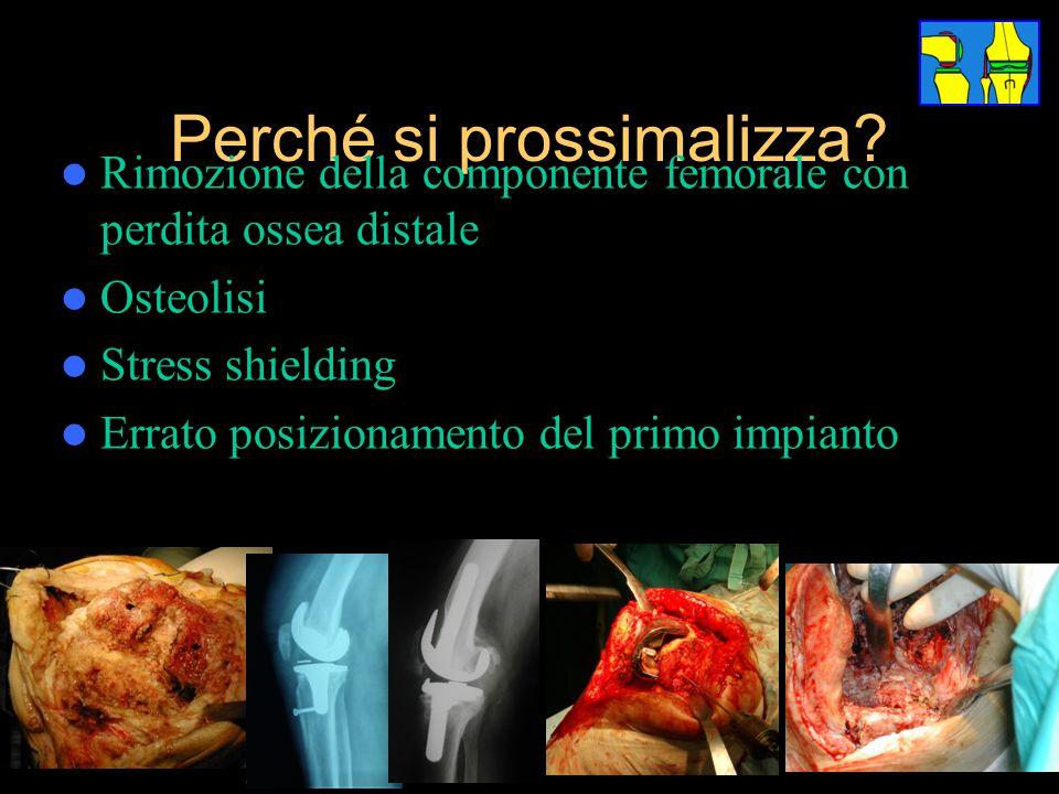 Perché si prossimalizza? Rimozione della componente femorale con perdita ossea distale Osteolisi Stress shielding Errato posizionamento del primo impi