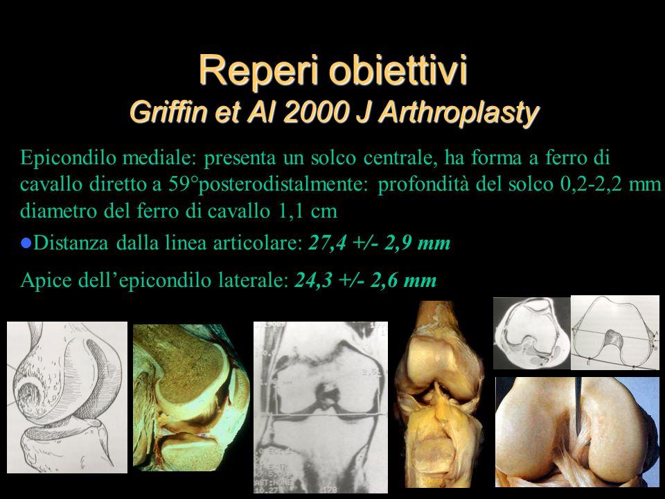 Reperi obiettivi Griffin et Al 2000 J Arthroplasty Epicondilo mediale: presenta un solco centrale, ha forma a ferro di cavallo diretto a 59°posterodis