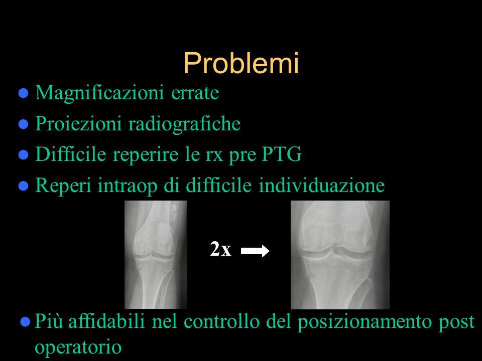 Problemi Magnificazioni errate Proiezioni radiografiche Difficile reperire le rx pre PTG Reperi intraop di difficile individuazione 2x Più affidabili nel controllo del posizionamento post operatorio