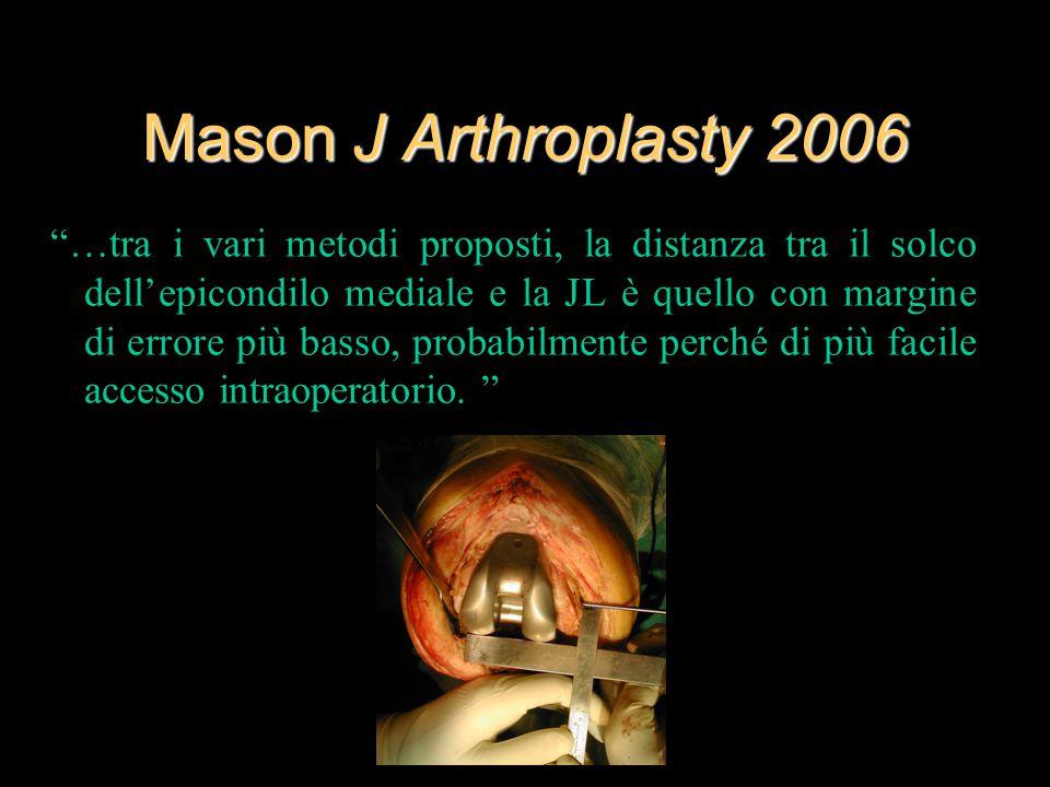 """Mason J Arthroplasty 2006 """"…tra i vari metodi proposti, la distanza tra il solco dell'epicondilo mediale e la JL è quello con margine di errore più ba"""