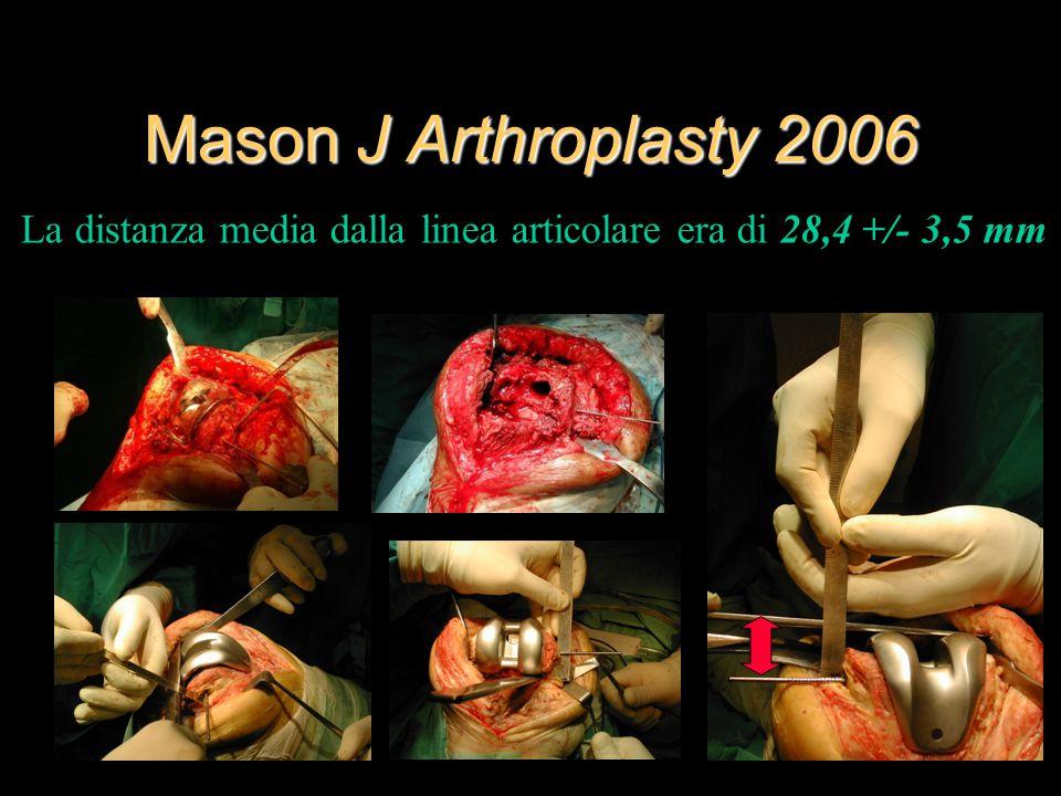 Mason J Arthroplasty 2006 La distanza media dalla linea articolare era di 28,4 +/- 3,5 mm