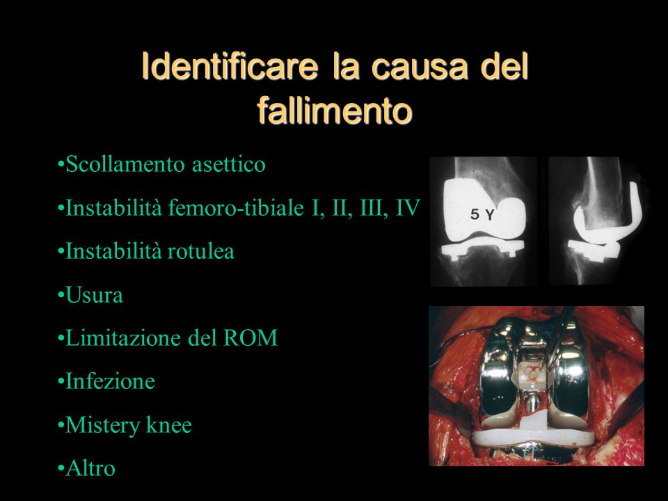 Identificare la causa del fallimento Scollamento asettico Instabilità femoro-tibiale I, II, III, IV Instabilità rotulea Usura Limitazione del ROM Infezione Mistery knee Altro