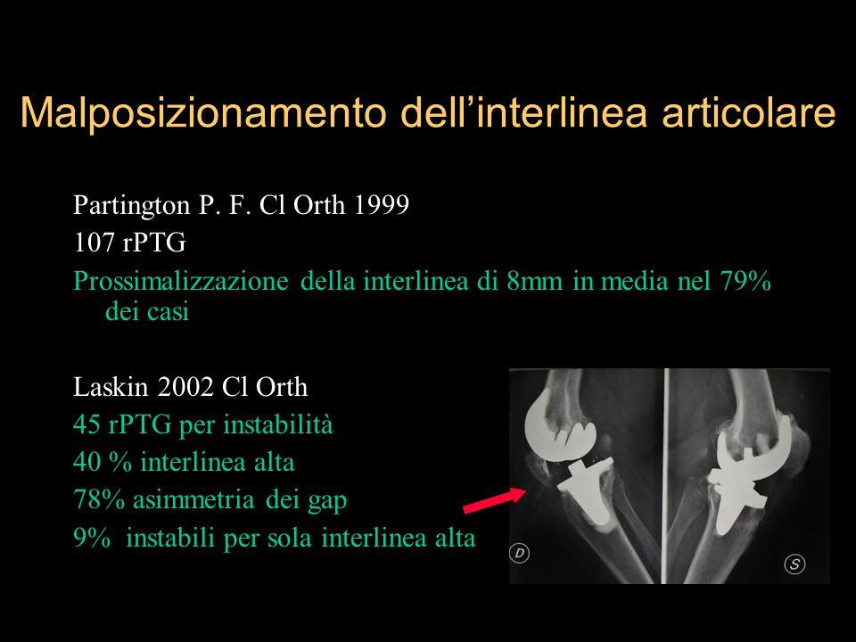 Malposizionamento dell'interlinea articolare Partington P. F. Cl Orth 1999 107 rPTG Prossimalizzazione della interlinea di 8mm in media nel 79% dei ca