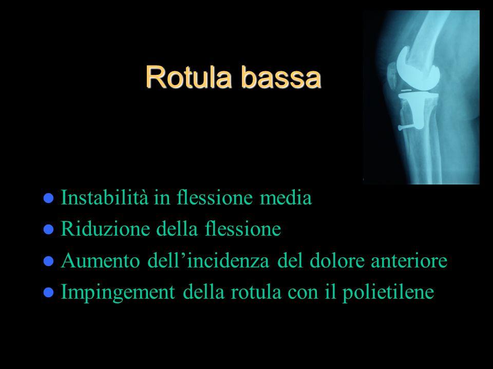 Rotula bassa Instabilità in flessione media Riduzione della flessione Aumento dell'incidenza del dolore anteriore Impingement della rotula con il polietilene