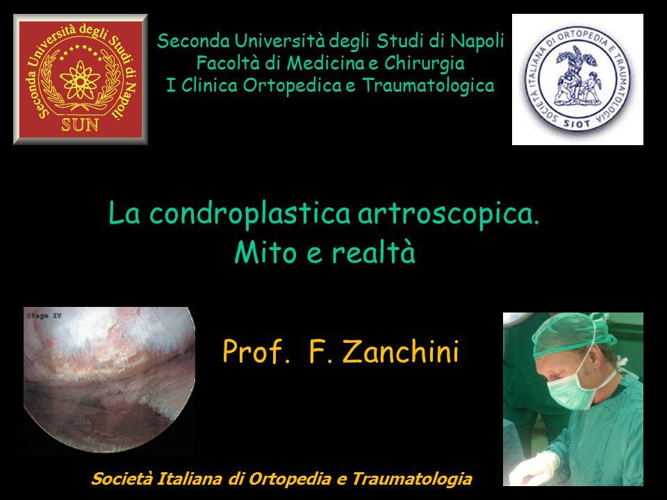 Seconda Università degli Studi di Napoli Facoltà di Medicina e Chirurgia I Clinica Ortopedica e Traumatologica La condroplastica artroscopica. Mito e