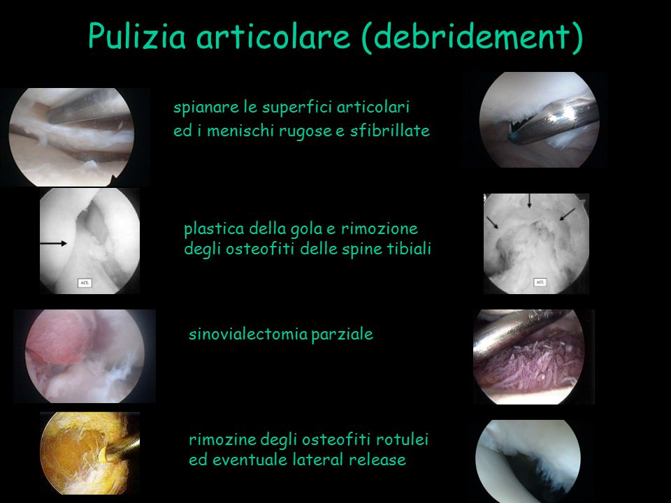 Pulizia articolare (debridement) spianare le superfici articolari ed i menischi rugose e sfibrillate plastica della gola e rimozione degli osteofiti d