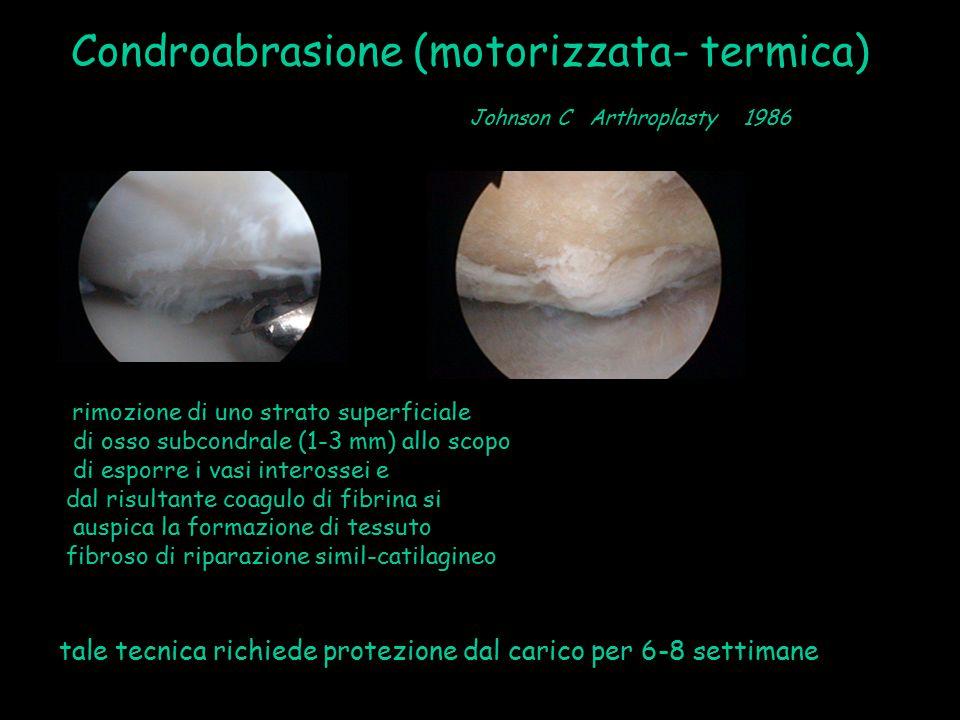 Condroabrasione (motorizzata- termica) rimozione di uno strato superficiale di osso subcondrale (1-3 mm) allo scopo di esporre i vasi interossei e dal