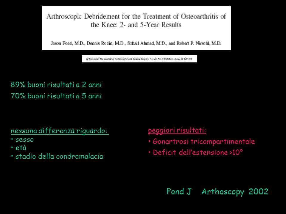 Fond J Arthoscopy 2002 89% buoni risultati a 2 anni 70% buoni risultati a 5 anni nessuna differenza riguardo: sesso età stadio della condromalacia peg