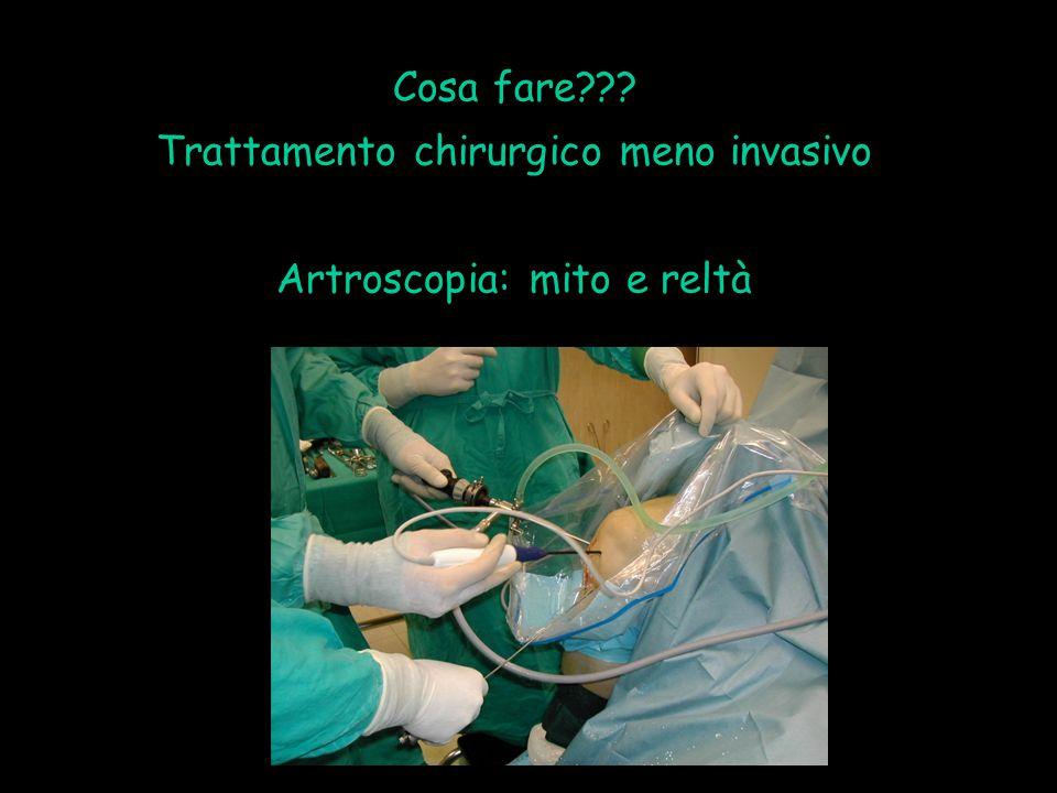 Cosa fare??? Trattamento chirurgico meno invasivo Artroscopia: mito e reltà